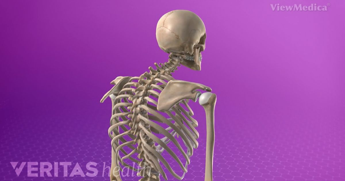Scoliosis at Kyphosis Curvature ng Spine