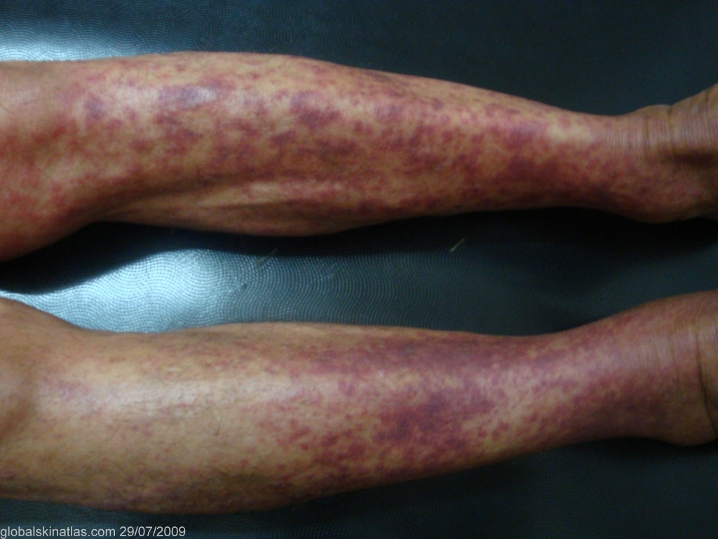 Purpuric Rashes