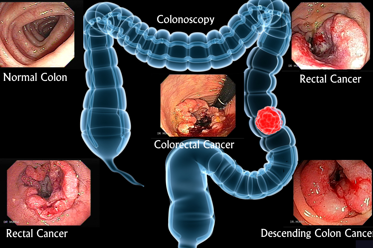 Cancer colorectal du cancer du côlon, du rectum et des intestins