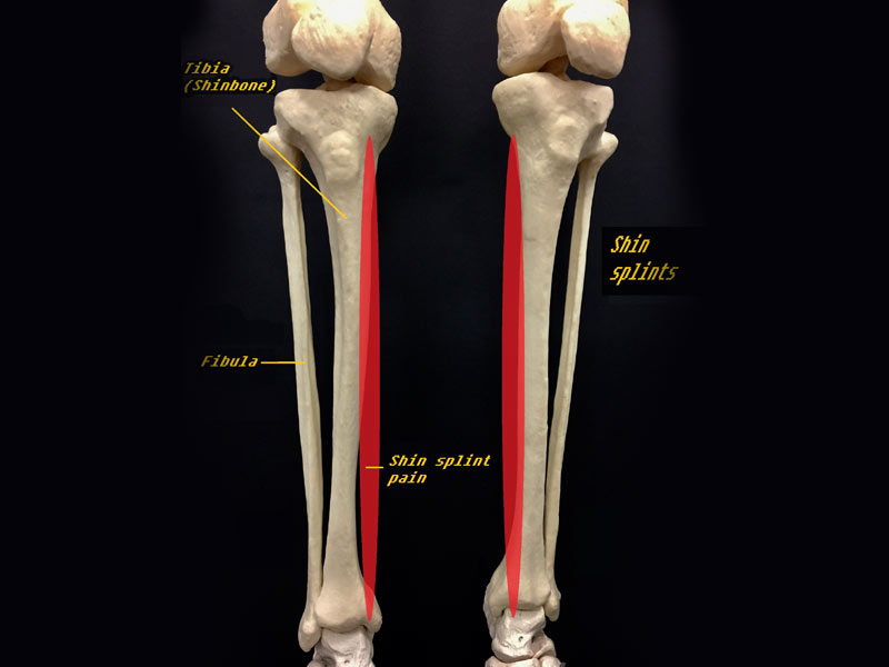 Shin Splints Medial Tibial Stress sindroms