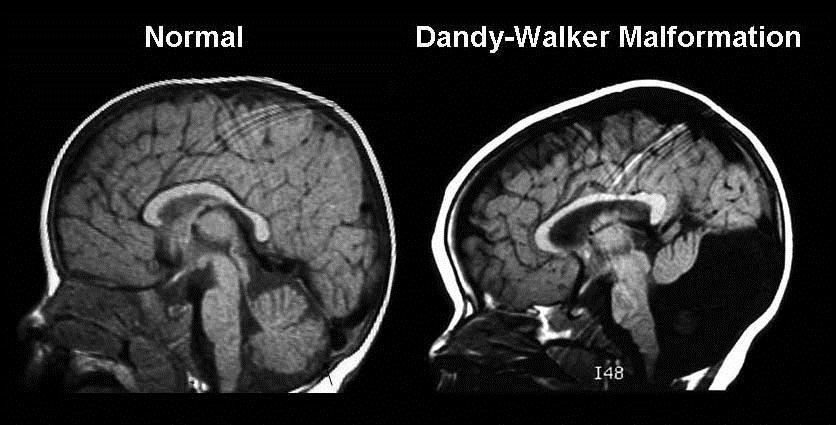 Sindrome di Dandy-Walker