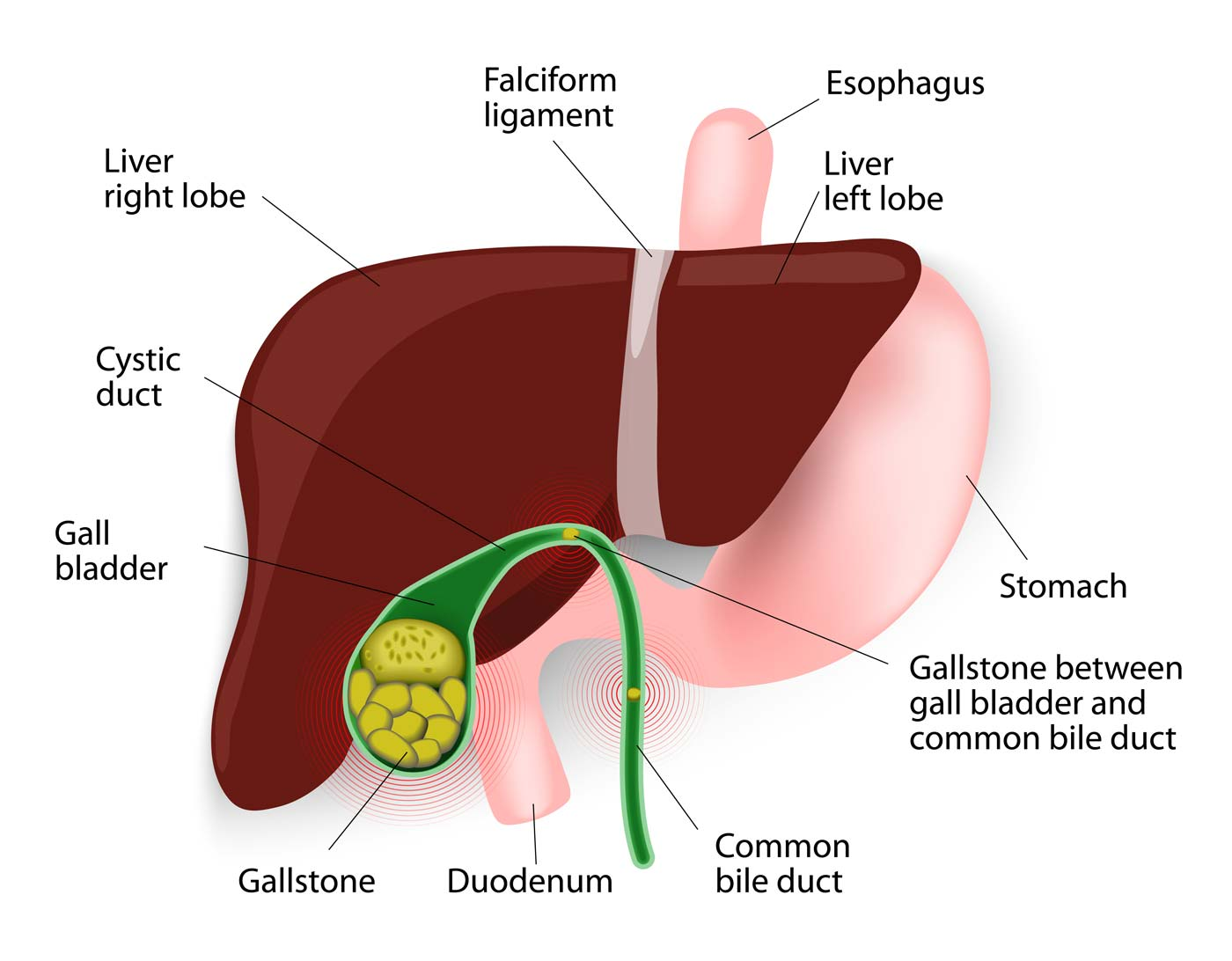 Gallstones and Bile