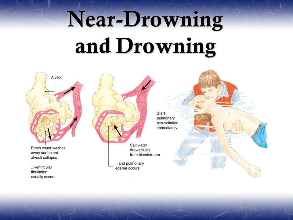 Drowning in Near Drowning