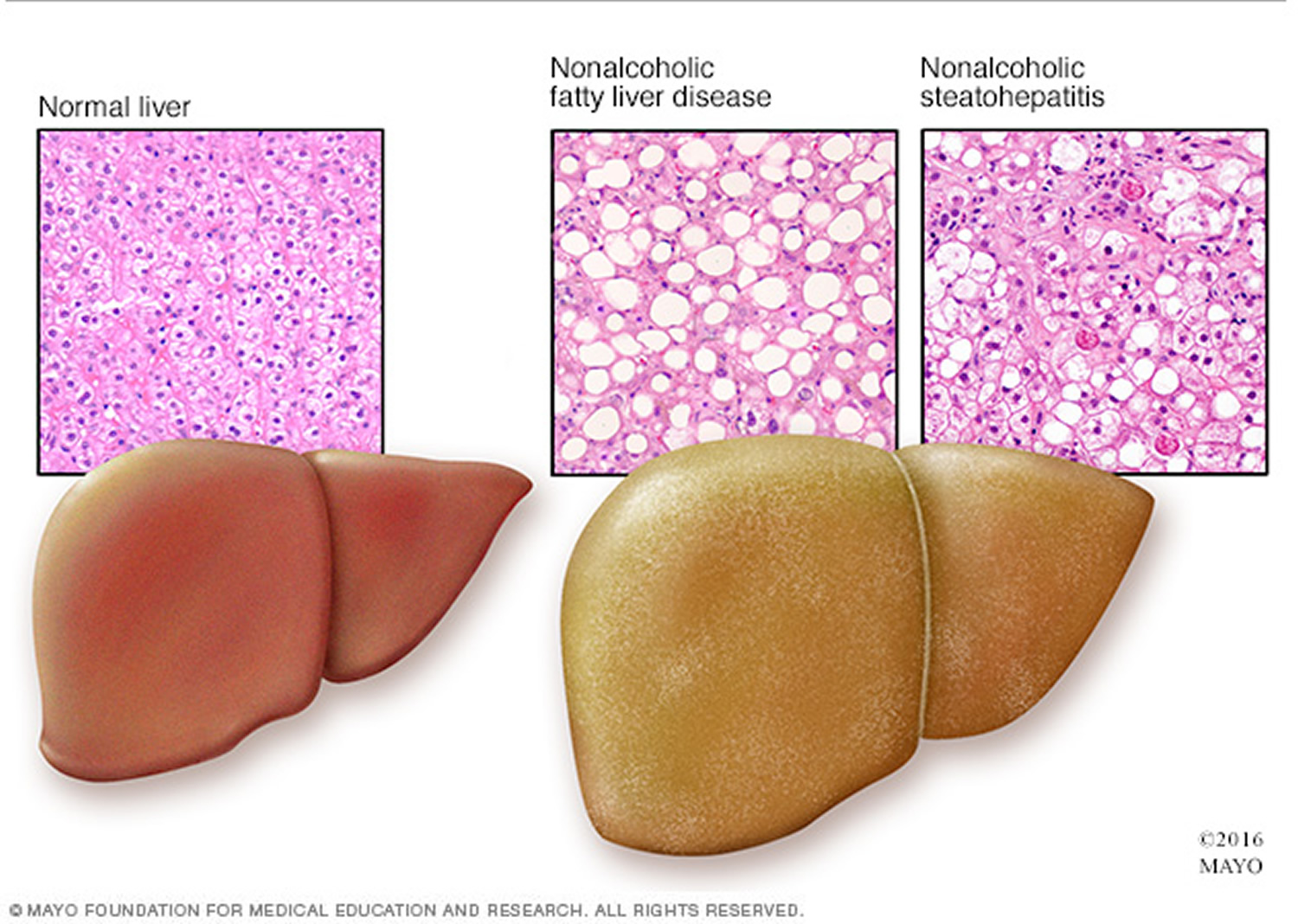 Steatohepatitis och Steatosis Fatty Liver