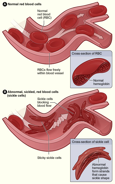 Sickle Cell Sykle Sykle Cell Anemi