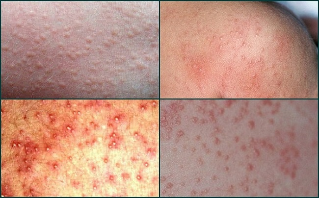 Prickly Heat dan Heat Rash Miliaria